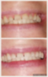 tallahassee teeth whitening