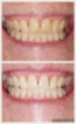 teeth whitening tallahassee
