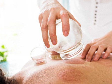 New Cupping Therapy now available
