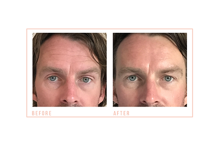 Male Non-Surgical Facial Toning Before a