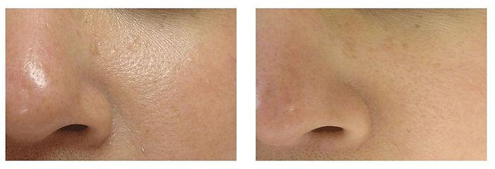 Skin-Refinement-Large.jpg