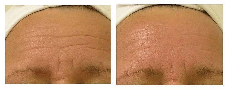 Wrinkles-Large.jpg