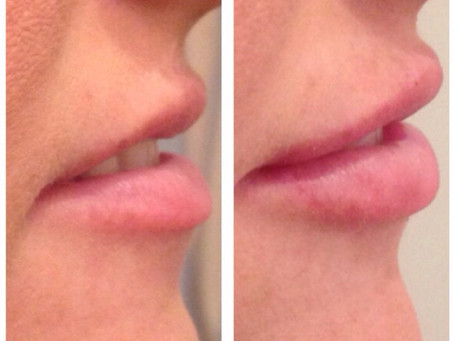 Lets talk Lip fillers...