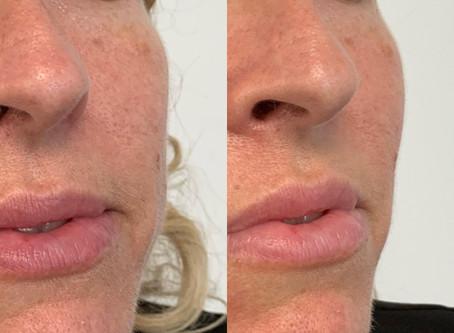 Facial treatments!