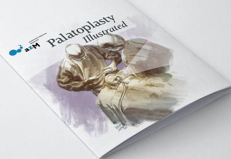 PalatoplastyCover.png