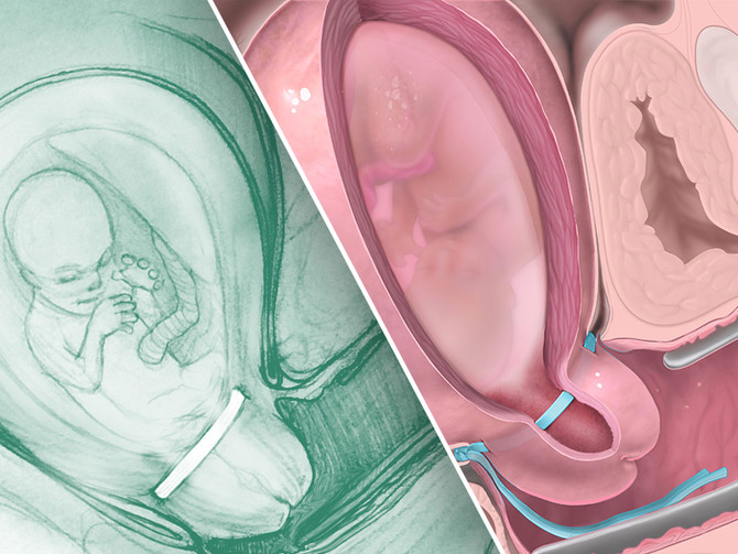 Medical Illustration: The rare link between art & science that you didn't know you need