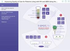 Oxford Immunotec T-SPOT