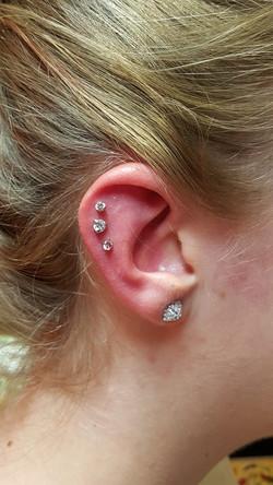 Cartilage02