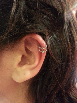 Cartilage01