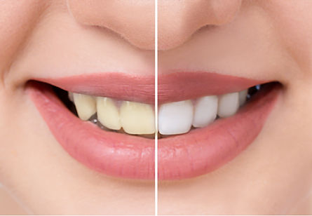 Close up beautiful teeth before and afte
