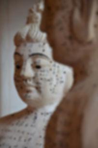 acupuncture-2956847_1280.jpg