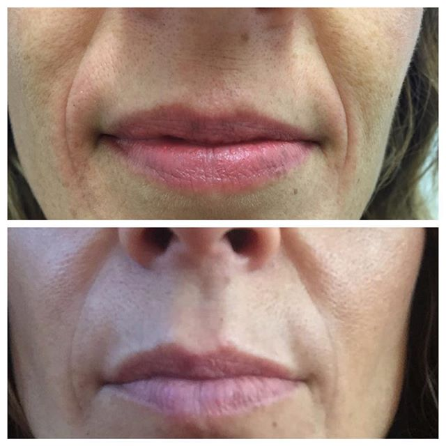 Nose to mouth lines softened naturally w