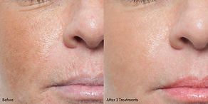 Microneedling-before-and-after.jpg
