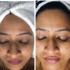 Facial - before & after