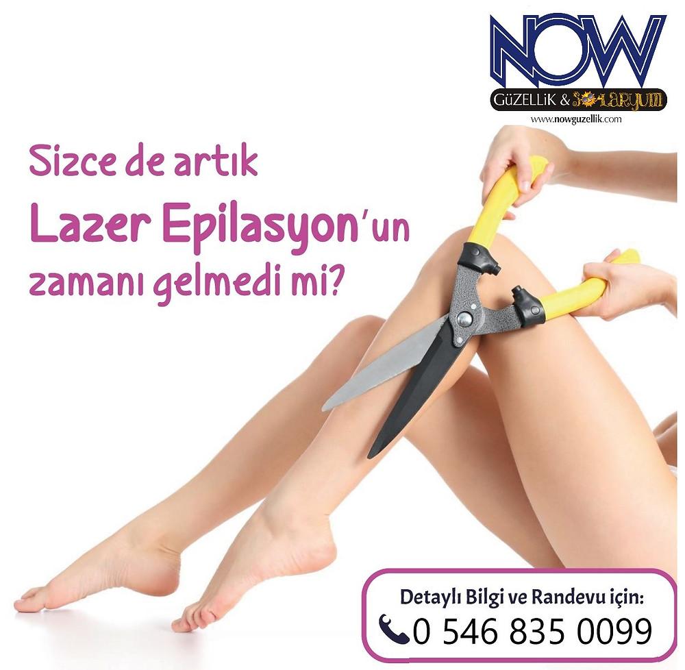 Lazer Epilasyon Gaziantep