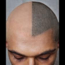 Saç Simülasyonu Gaziantep