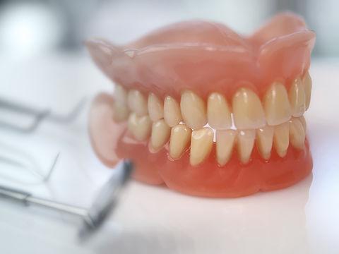Dentiera-ponte-dentale-e-protesi-a-Milan