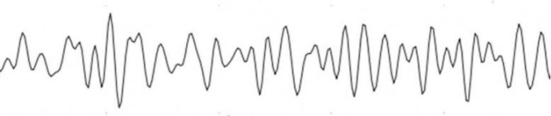 Beta -- [13 - 38 Hz]