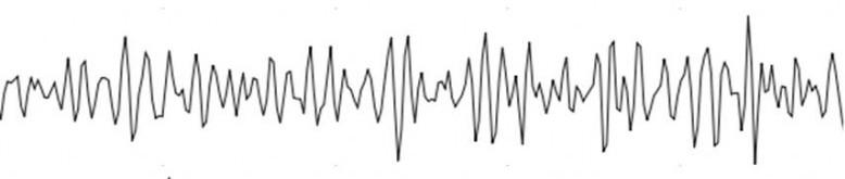 Gamma -- [39 Hz upwards]