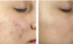 acne before and after_edited.png