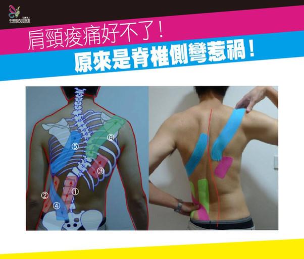 【肩頸痠痛好不了,原來是脊椎側彎惹禍】