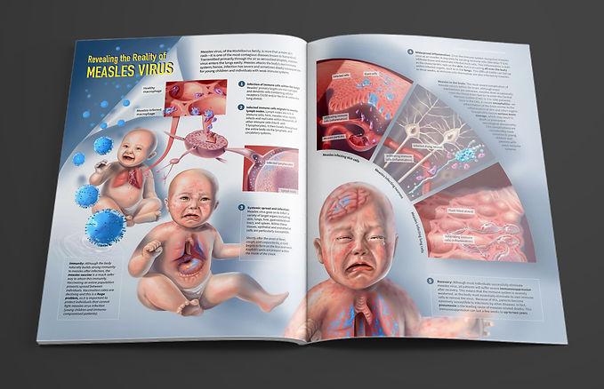 Measles Pathol Mockup.jpg