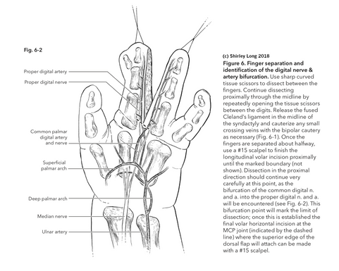 Syndactyly Release Surgery