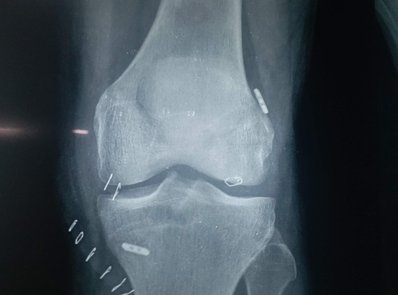 All inside ACL Reconstruction