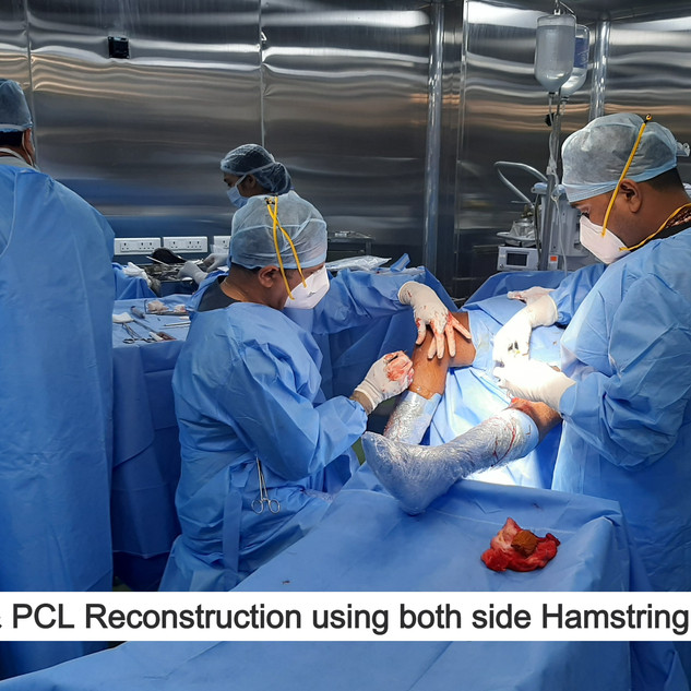 Combined ACL and PCL Reconstruction
