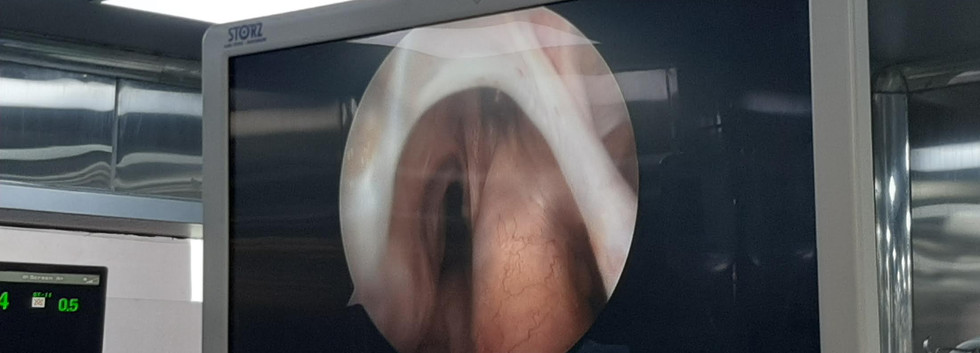 Complete ACL and PCL Tear