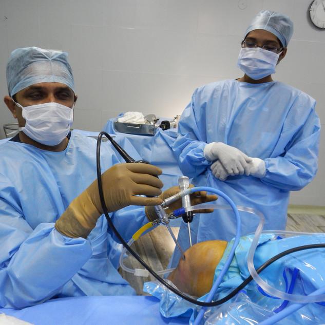 Knee arthroscopic Microfracture procedur