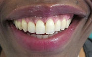 "content=""Dentist SW1 Affordable Prices Immediate Appointments"