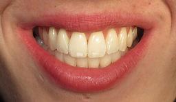 SW1 Dental Studio Dental Hygienist