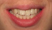 Dental Hygiene & Therpist
