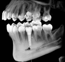 Dental Implants  provide secure replacement of teeth to ensure proper bite function, facial form and a confident smile