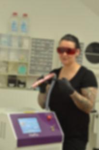 Laserentfernung Jenny B's