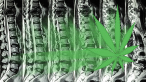 Survey: Many Patients with Spine-Related Pain Turning to CBD