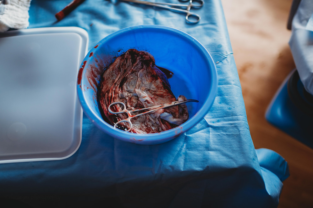 Preserving your placenta post partum | Best New London and Old Saybrook Connecticut Family, Baby, and Birth Photographer