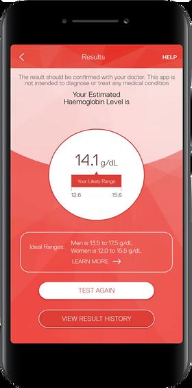 Sanguina AnemoCheck Mobile app