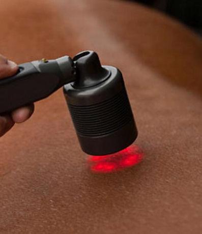 Electrotherapies, laser