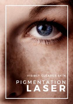 Laser for Pigmentations