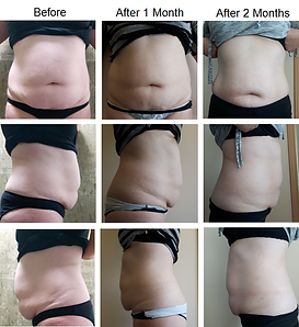 Before & After Stomach and Love Handles with Fat Freezing CoolSculpting