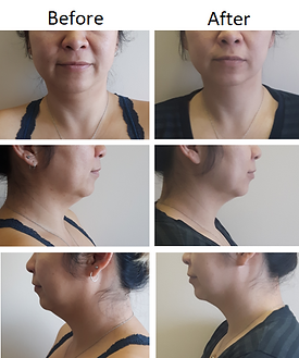 Before & After Double Chin Removal Fat Freezing CoolSculpting