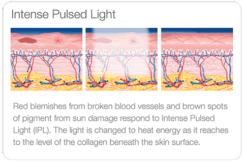 Diagram showing how Intense Pulsed Light (IPL) works