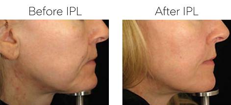 Skin Rejuvenation treatment for improving minor skin sagging