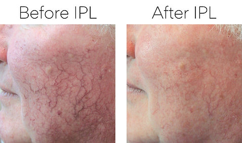 Before & after picture of a male client's face after a series of treatments for telangiectasia (spider veins)