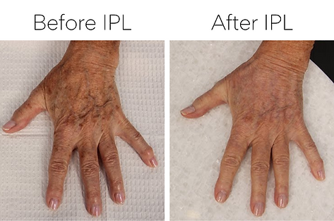 Before & after picture of a female client's hand after a one of treatments for unwanted brown spots and sun damage
