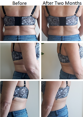 Before & After Bra Line Fat Removal with Fat Freezing CoolSculpting