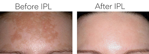 Before & After photo of a clients forhead after series of treatments for melasma