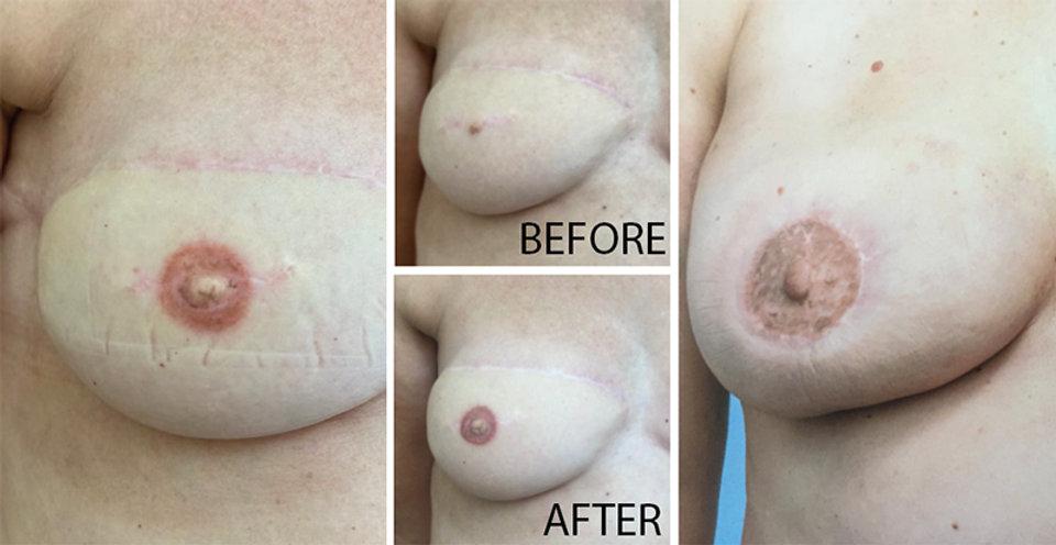breast aerola.jpg